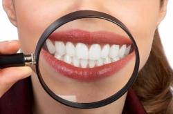 Che c'entrano i denti sani con la salute generale? Se ne parla a Pescara